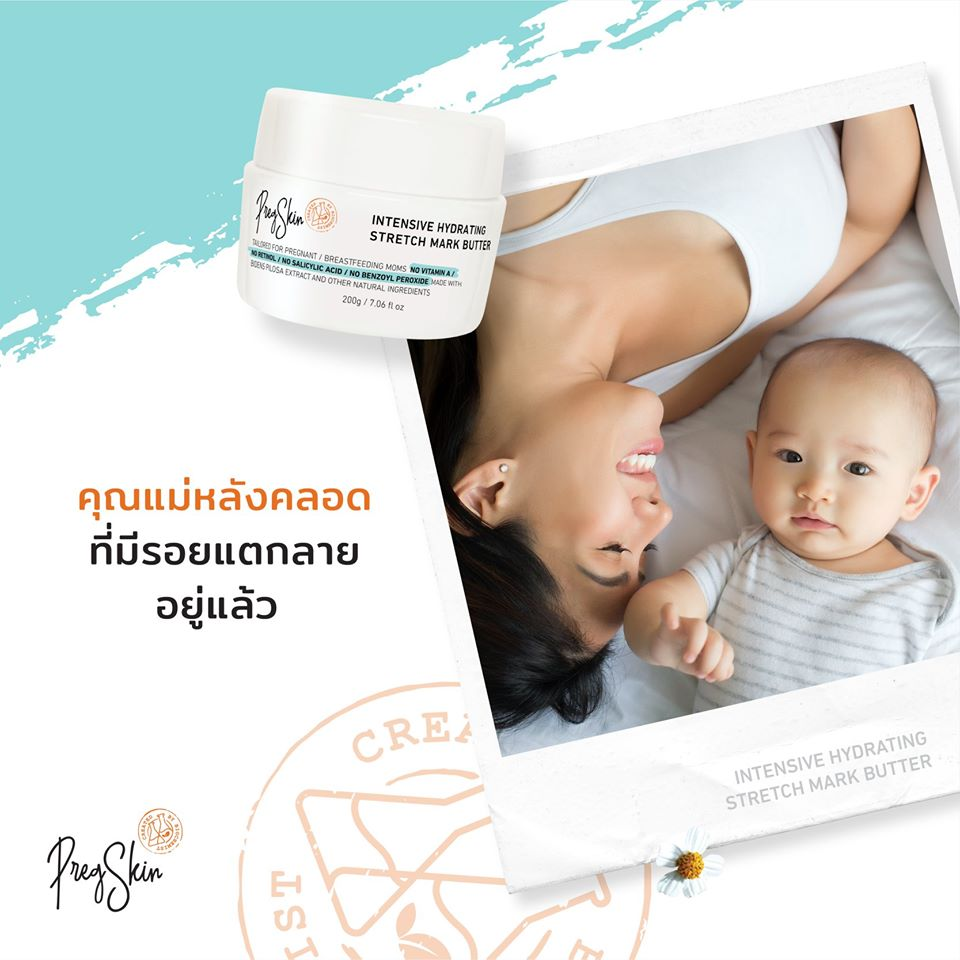 stretch marks prevention cream for pregnant women after delivery